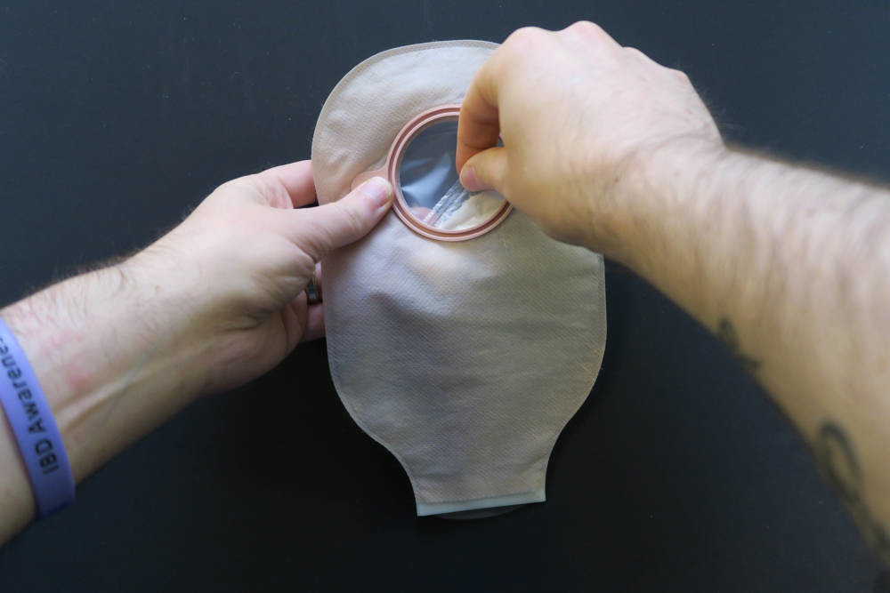 Stoma Care and Accessories